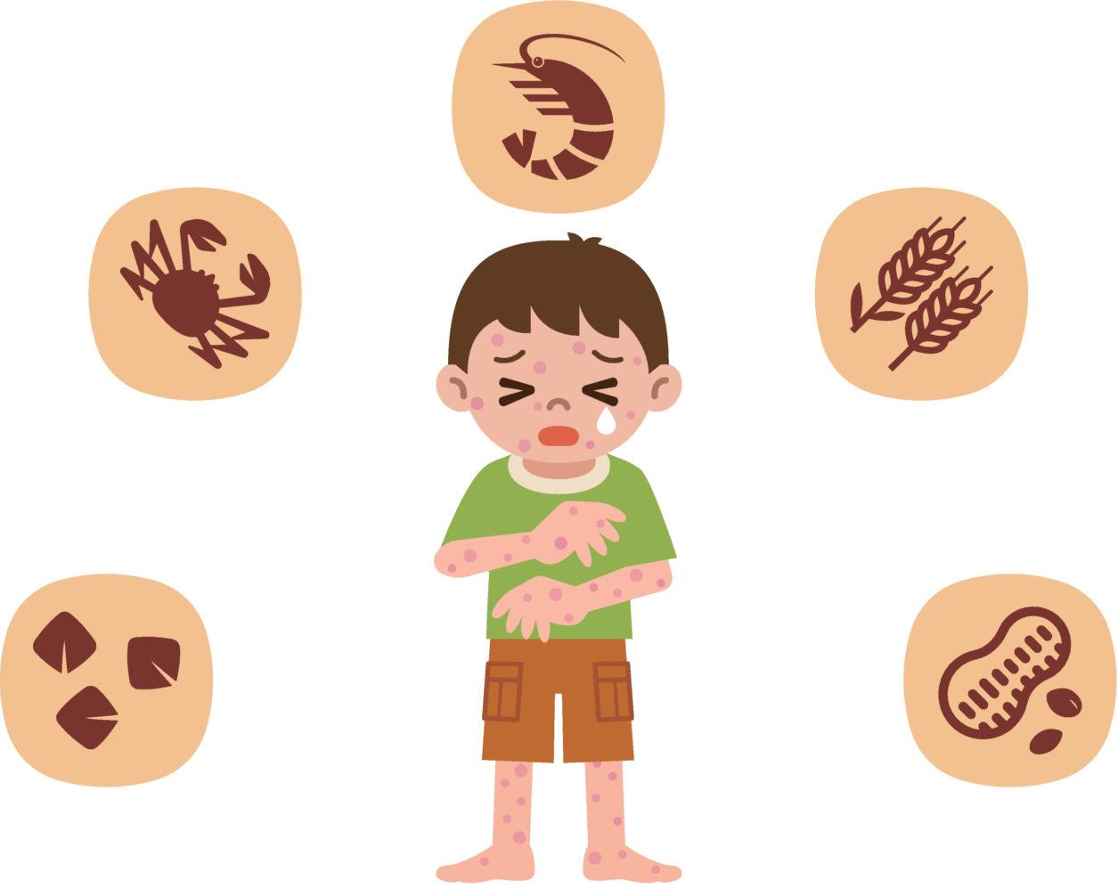 nahrungsmittel allergien wie wir bei unseren men s auf nummer sicher gehen. Black Bedroom Furniture Sets. Home Design Ideas